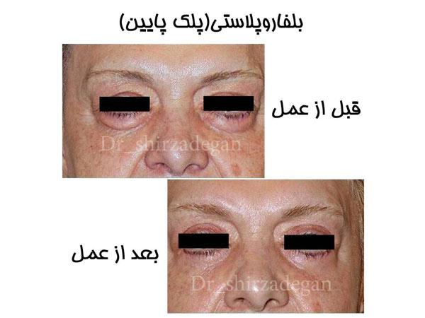 نتایج جراحی پلک