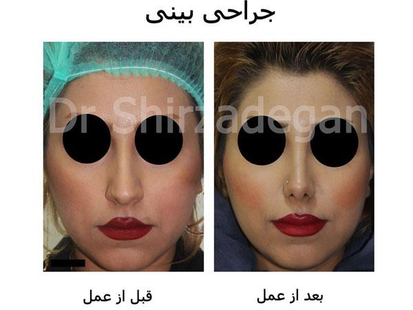عمل بینی و تصویر بعد