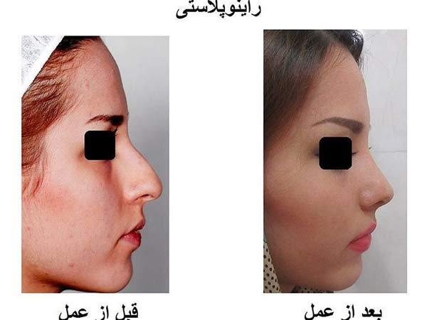 قیمت عمل جراحی زیبایی بینی