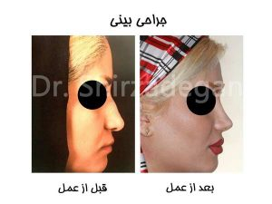 عمل جراحی بینی سربالا