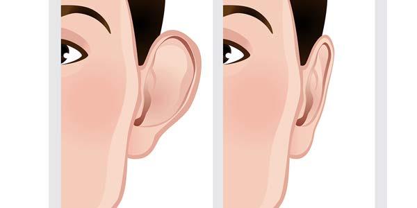 عوارض جراحی گوش چیست