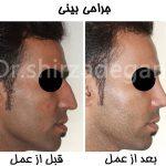 نمونه عمل بینی مردان