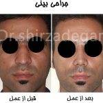 جراحی و عمل بینی مردان