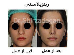 عمل جراحی بینی طبیعی