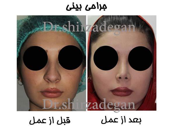 جراحی بینی زیر 18 سال
