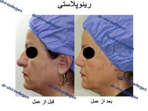 طرز خوابیدن بعد از عمل بینی