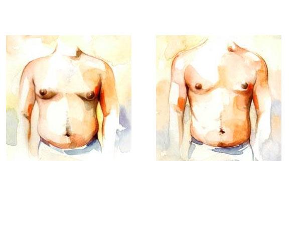 جراحی سینه ژنیکوماستی آقایان