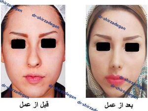 چگونگی و نحوه خوابیدن بعد از جراحی بینی