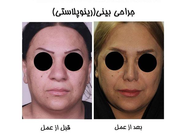 جراحی بینی گوشتی با لیزر