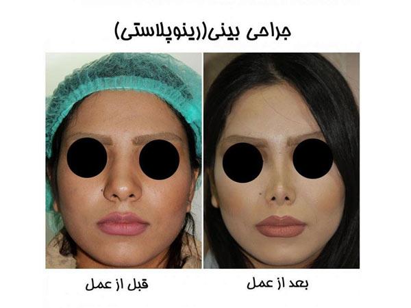 معایب کوچک کردن بینی گوشتی با لیزر