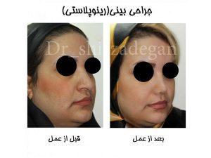 دلایل تمایل افراد به جراحی بینی با لیزر