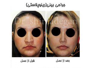 عوارض کوچک کردن بینی گوشتی با لیزر