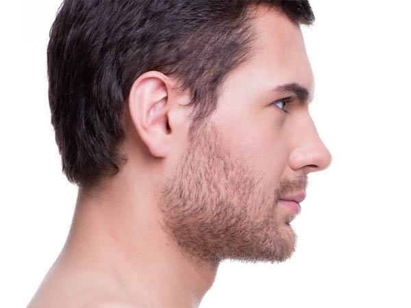 مدل بینی طبیعی عمل شده آقایان