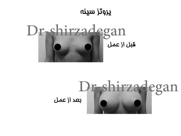 نمونه کار جراحی سینه پروتزی